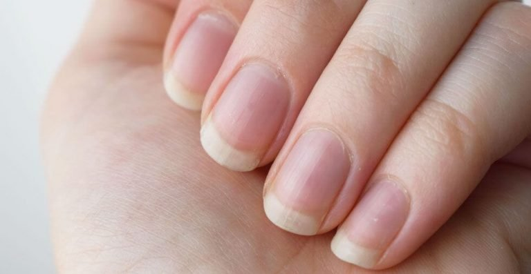 How To Grow Nails Faster Naturally | 9 super faster way